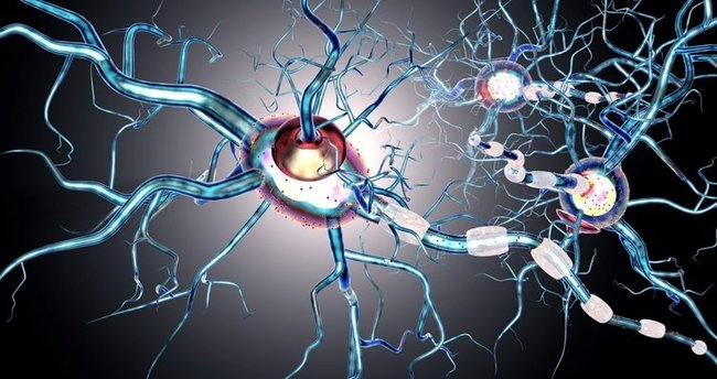 multiple skleroz nedir